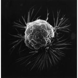 Immunothérapie la révolution contre le cancer est en marche