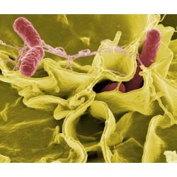 5 conseils essentiels pour prévenir les risques de salmonellose