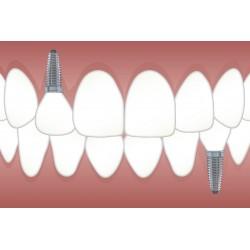 Implants dentaires : les détails à connaître